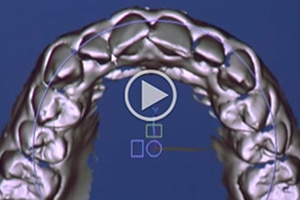 SureSmile Video thumbnail at MK Orthodontics in Waterville and Augusta ME